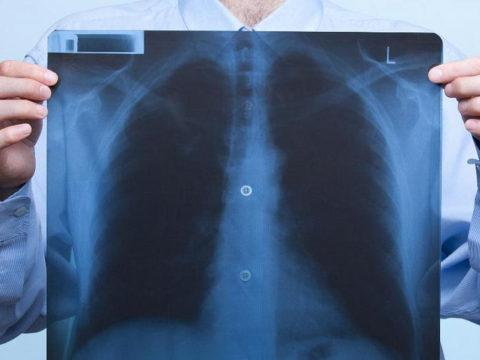 На 1 марта депздрав в Иванове зафиксировал снижение заболеваемости пневмонией на 26,2%