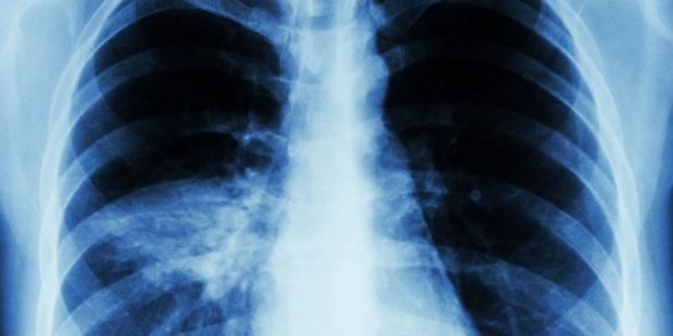 В Ивановской области на 8,5% за неделю и в 4 раза за год выросла заболеваемость пневмонией