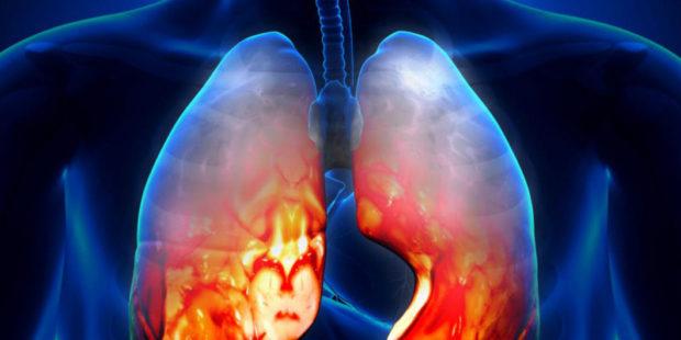 В Ивановской области в этом году болеют пневмонией более чем в 4 раза чаще