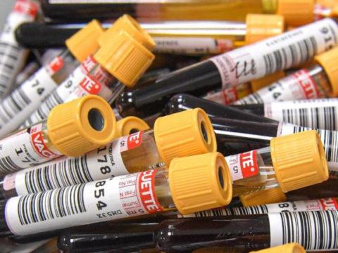 Ученые из Швейцарии разработали тест для определения антител к COVID по капле крови