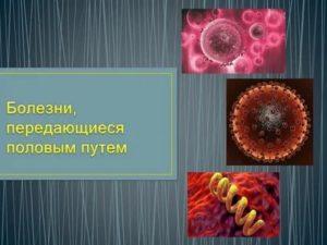 Особенности диагностики и лечения заболеваний, которые передаются половым путем