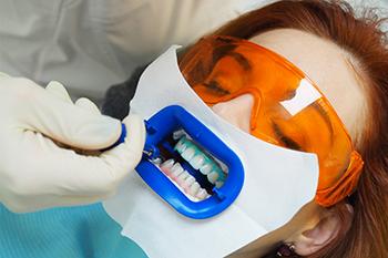 Отбеливание зубов: как проходит процедура?