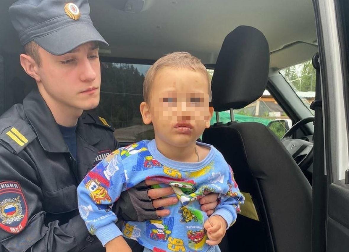 Избиение ребенка в подмосковном Дмитрове: тулячка стала фигурантом уголовного дела о неисполнении родительских обязанностей